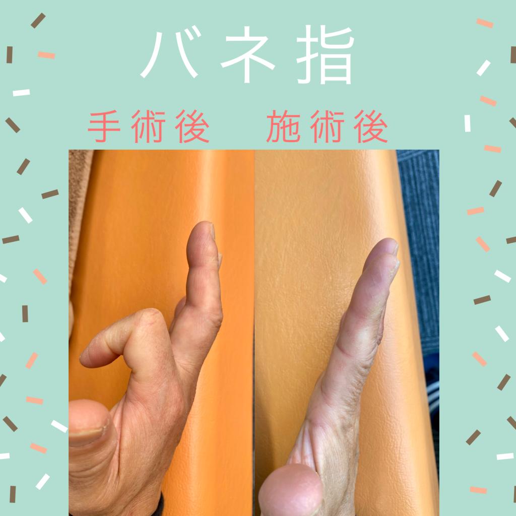 指 手術 後 バネ